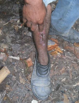 Sem medicamentos e isolado, trabalhador que se acidentou com facão no trabalho ficou semanas com corte aberto