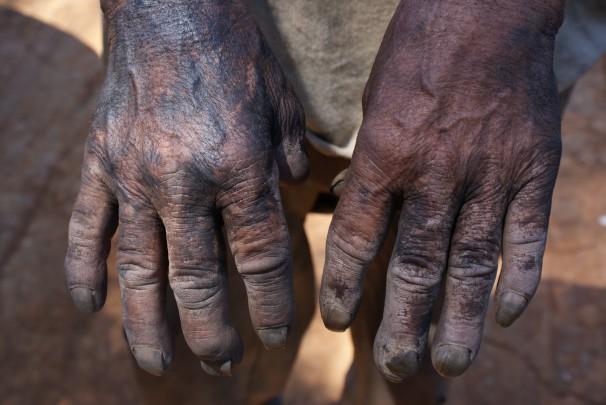As mãos, negras de pele e de carvão, de um dos trabalhadores resgatados no interior paulista