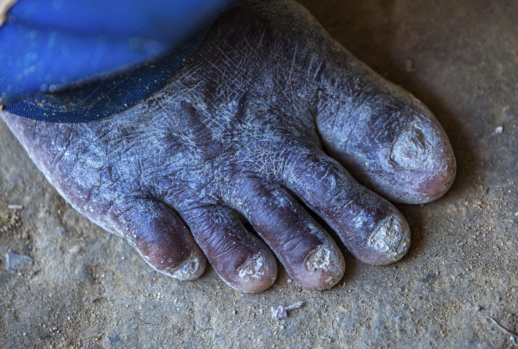Muitos trabalhadores entravam no garimpo descalços, machucando os pés e pernas